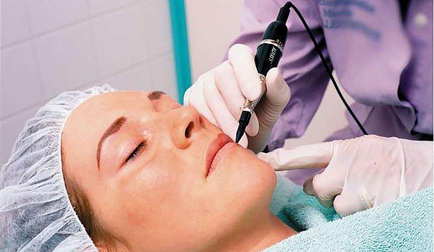 Удаление родимых пятен на лице косметологом