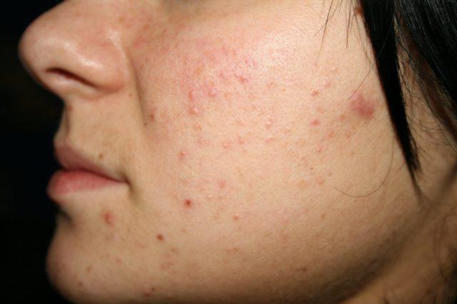 На не очищенной от продукта выделения сальных желез коже создается благоприятная среда для размножения микробов