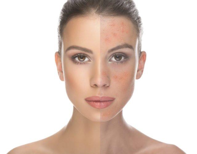 Если не уверены в происхождении сыпи на лице, лучше провести полное обследование организма