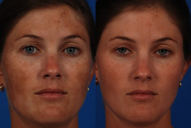 Нарушение пигментации названо врачами дерматологами меланозом