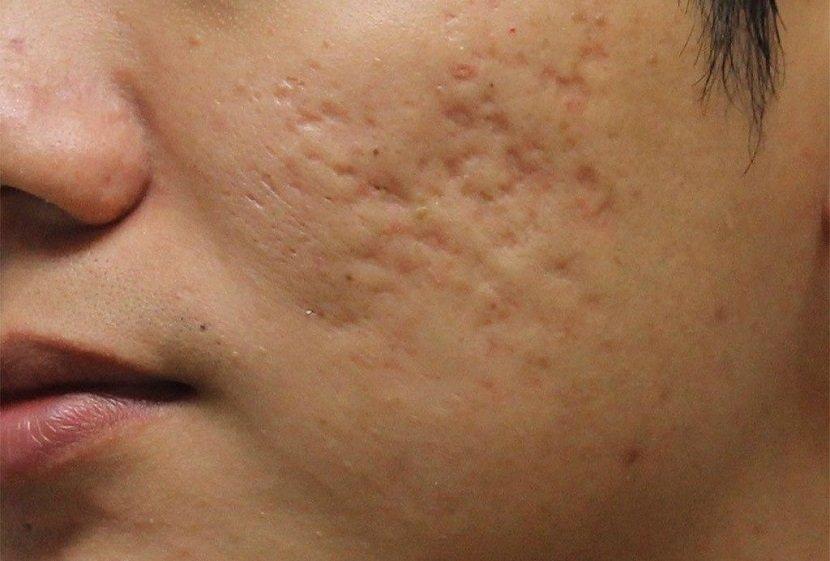 Бугристая кожа на лице, причины, фото