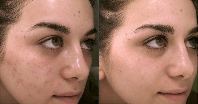 До и после применения салициловой мази