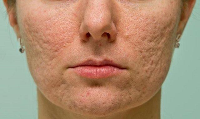 Бугристая кожа