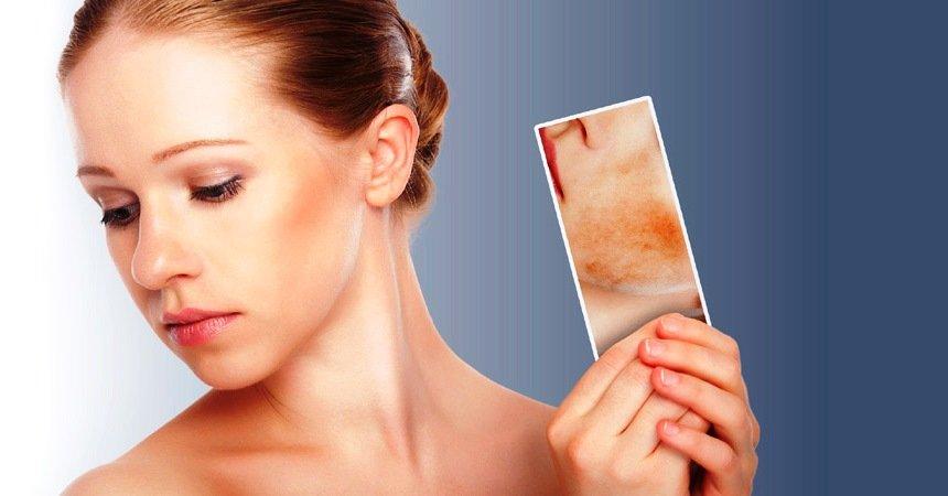 Лечения купероза на лице в домашних условиях: рецепты и методы