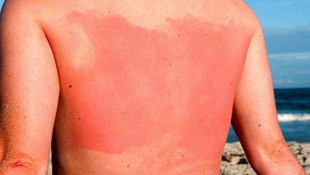 Солнечный ожог на спине