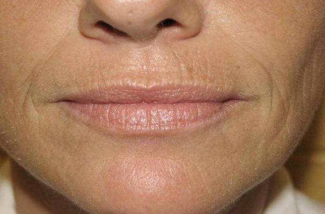 Морщины над губами
