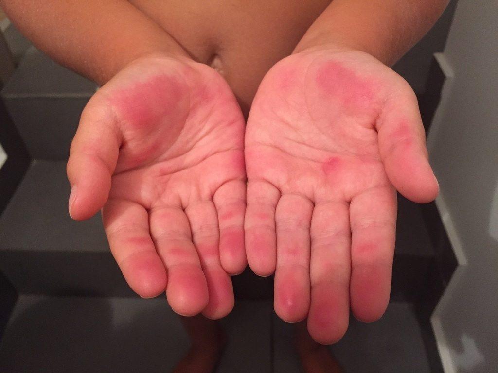 красные пятна на руках