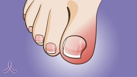 Операция по удалению ногтя