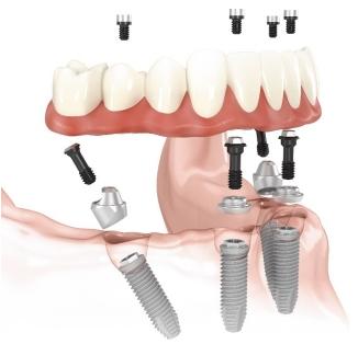 Протезирование на имплантах – виды, этапы установки, цены