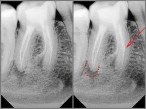 Перелом зуба под коронкой: что делать?