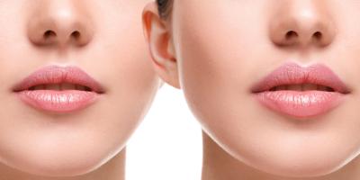 Как выбрать филлер для коррекции губ?