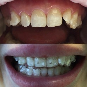 Выравнивание зубов элайнерами: плюсы и минусы