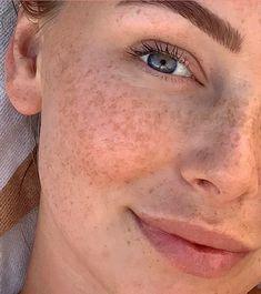 Как избавиться от пигментации кожи